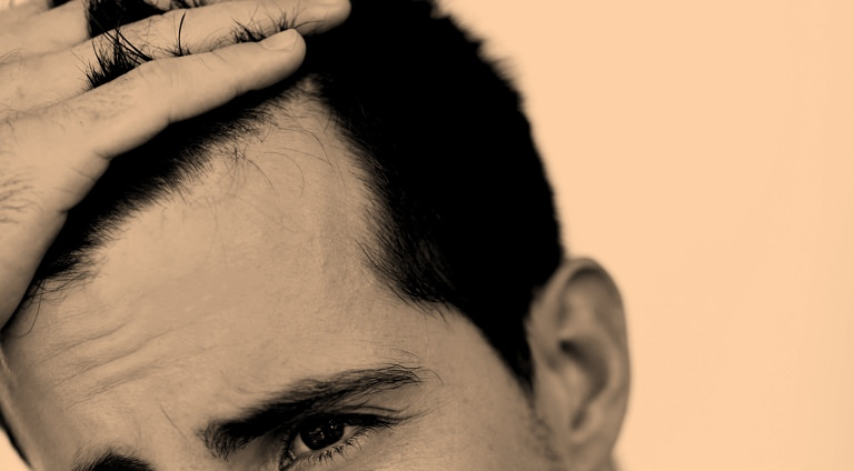 Thin or Thinning Hair? Try These.